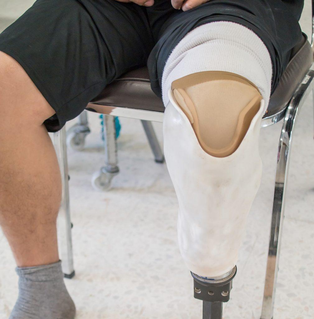 Man with prostheses leg