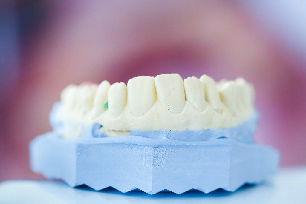 Denture mold
