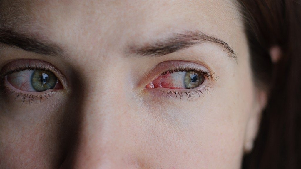 Closeup of irritated or infected red bloodshot eye - conjunctivitis