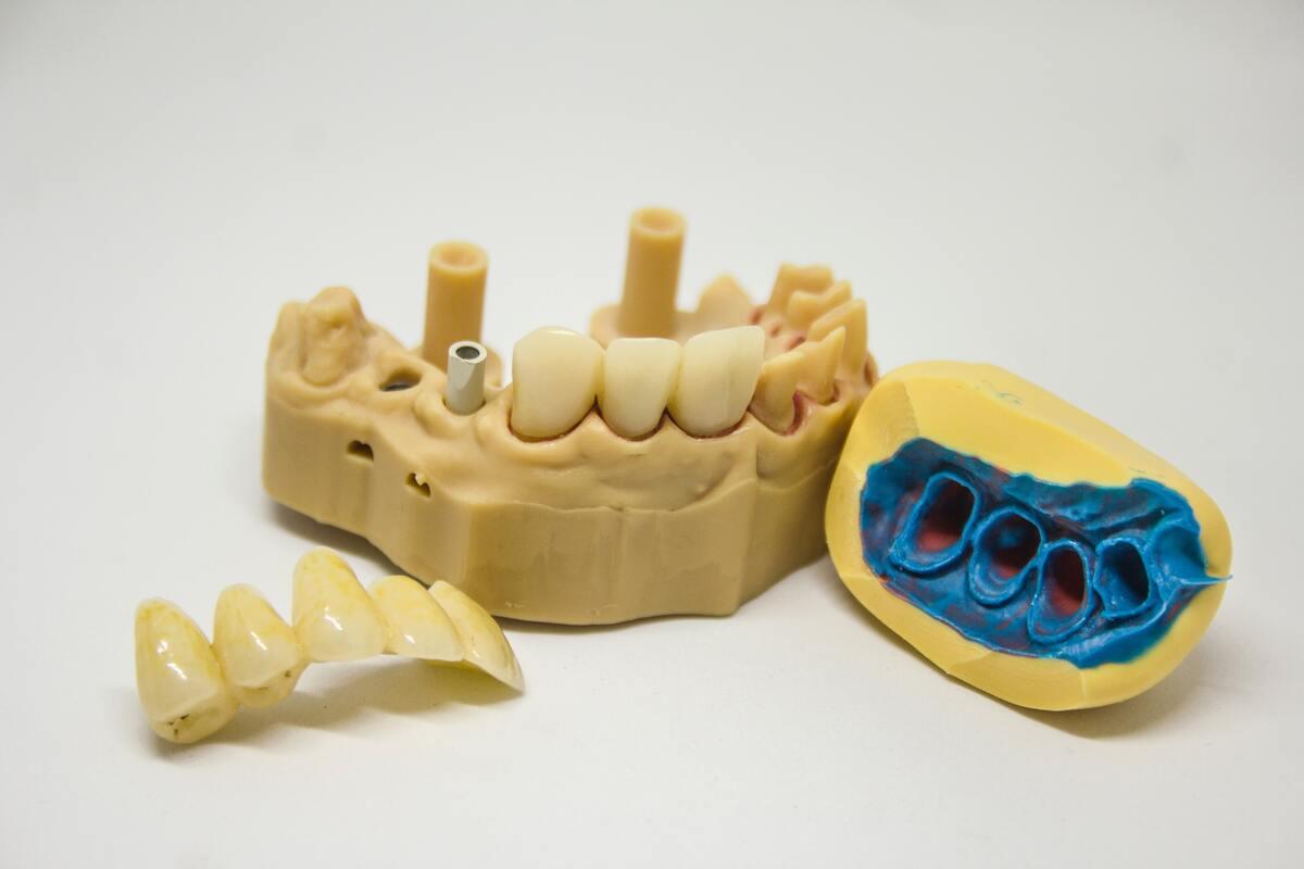 3d model of teeth